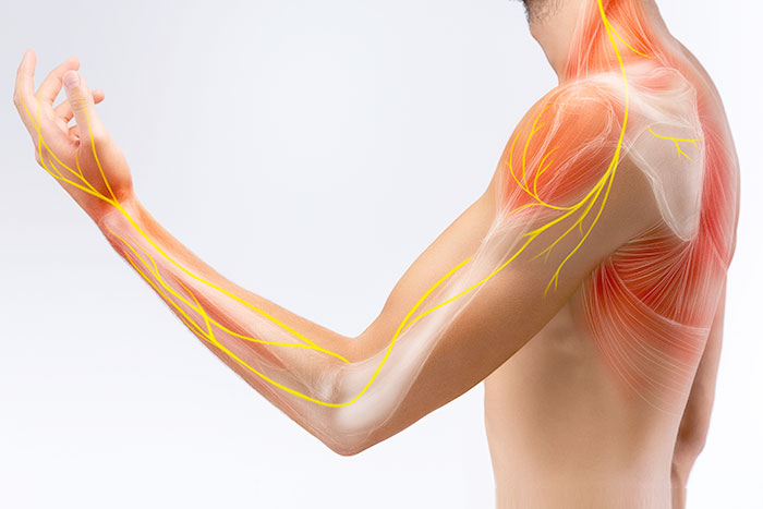 Regenerative Medicine for Tennis Elbow